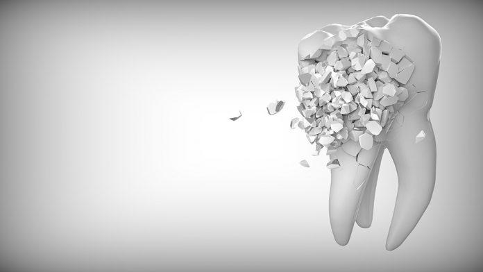 dente cariato 2