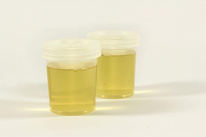 emoglobina nelle urine